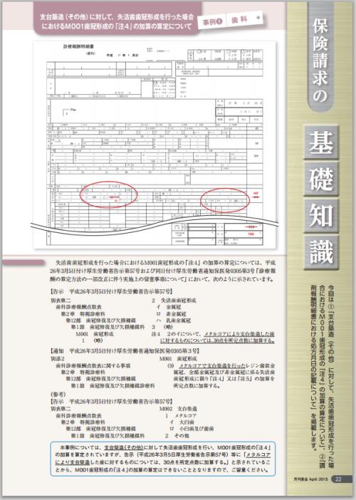 メタルコア加算2015-04-22 18.10.47